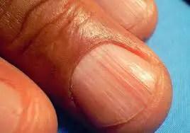tratamiento para uñas con estrias