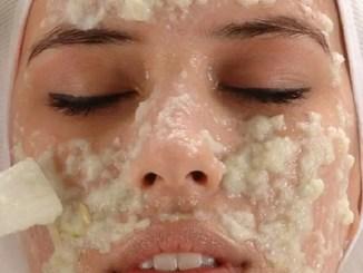 Trucos caseros para la piel que no se deben aplicar