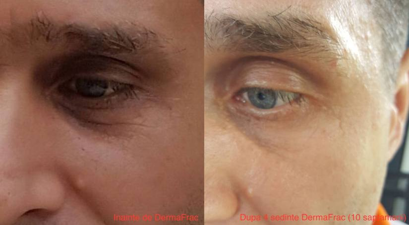 Tratamente DermaFrac