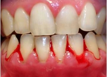 Gum Bleeding