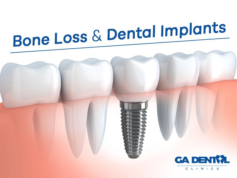 Bone Loss Impacts Dental Implants