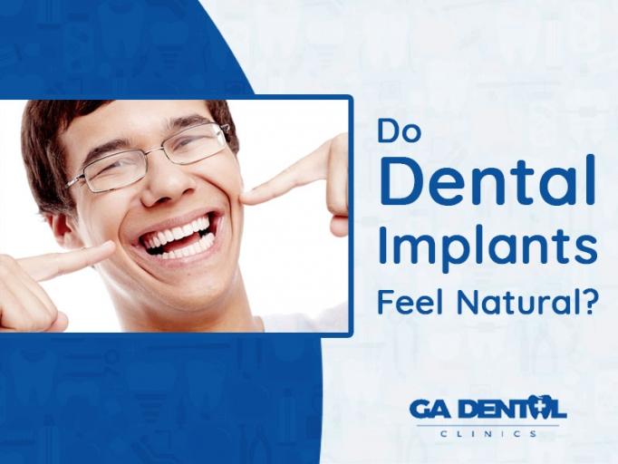 Do Dental Implants Feel Natural
