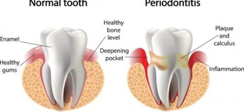 Causes of Periodontal Disease