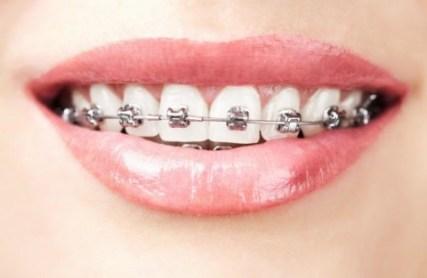 Traditional Dental Braces