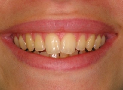 Discoloured or Chipped Teeth