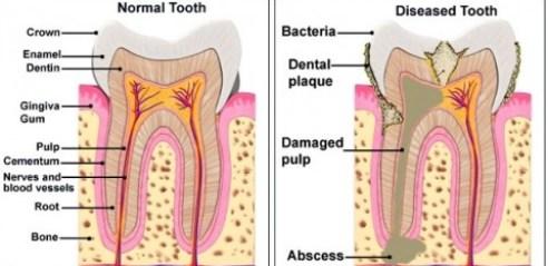 Normal VS Diseased Tooth