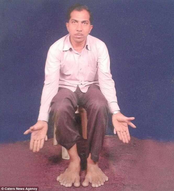 Indiano bate recorde mundial com 28 dedos no corpo
