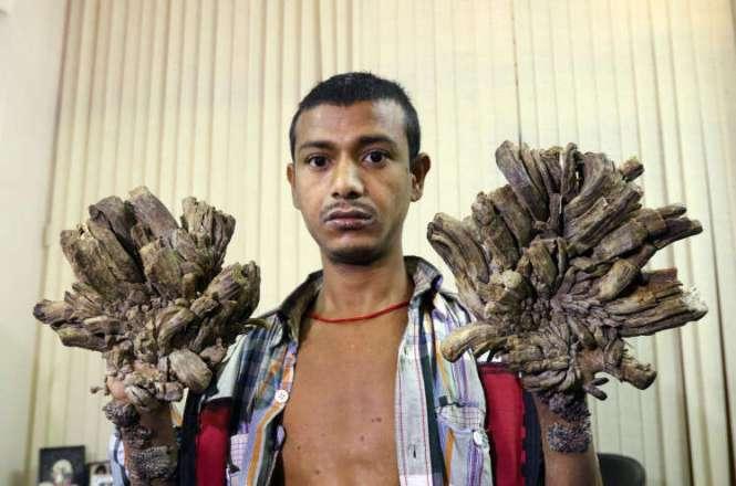Homem sofre com condição rara que faz com que raízes de árvore cresçam em suas mãos e pés