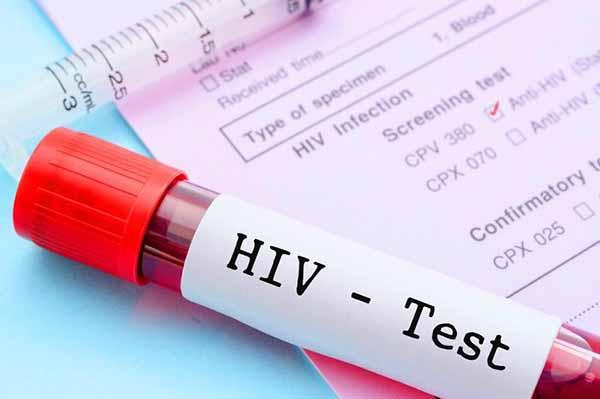 hiv-20-autotest