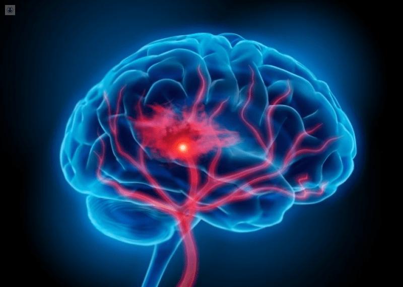 Daños neurológicos, grave secuela de Covid-19: expertos