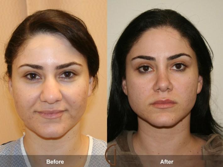 before & after rhinoplasty 3   nose job surgeon orange county