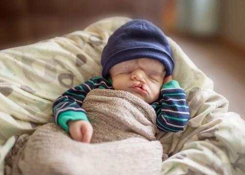 Ein Fotograf von On Angels Wings fotografierte kurz nach seiner Geburt dieses Foto von Owen Masterson. Owen wurde ohne großen Schädel geboren und sollte die Geburt nicht überleben.