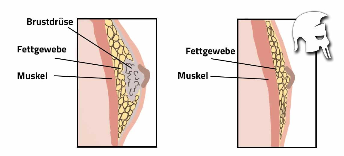 Behandlung Gynäkomastie Aromatasehemmer