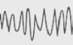 Beta Brainwave Frequencies