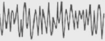 Gamma Brainwave Frequency
