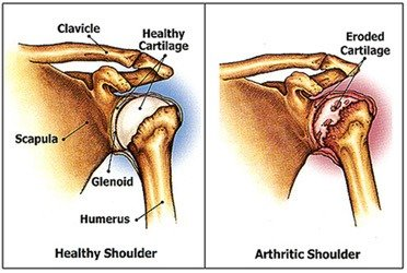 You can beat shoulder arthritis
