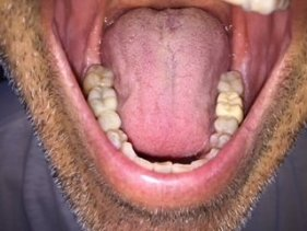 dental mercury amalgams