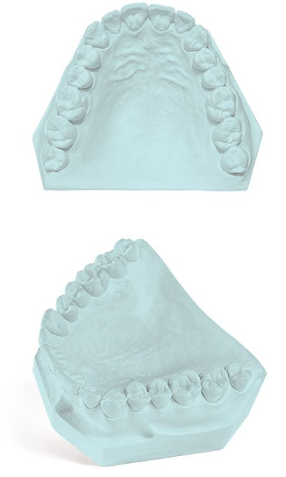 Apex Dental Gypsum