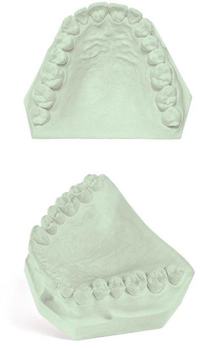Veri-Die Dental Gypsum