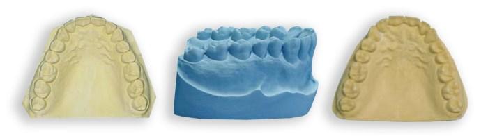 incorrect-models-for-duplication dental model duplication
