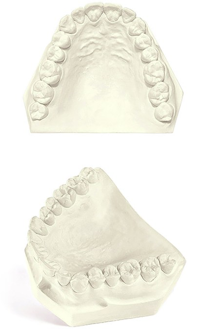 Pemaco CAD CAM Dental Gypsum