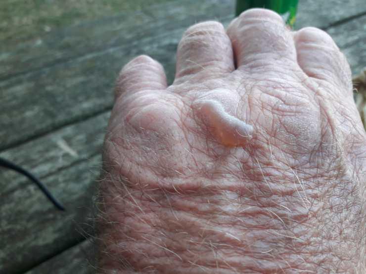 Wrinkle hand