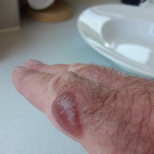 Blister on a hand