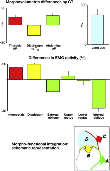Abdominothoracic differences (mean ± SE) measured in the same patients during abdominal distension vs basal conditions. (A) Anterior wall protrusion (increased antero-posterior diameter) and relaxation (decreased EMG activity in external and internal obliques). (B) Diaphragmatic descent (referenced to T12) and contraction (increased EMG activity). (C) Costal expansion (increased antero-posterior diameter) and intercostal contraction (increased EMG activity). (D) Increased lung volume. Gastroenterology 2015; DOI: http://dx.doi.org/10.1053/j.gastro.2014.12.006