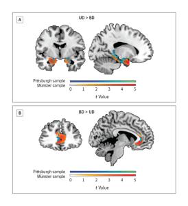 Brain Morphometry Predicts Bipolar vs Unipolar
