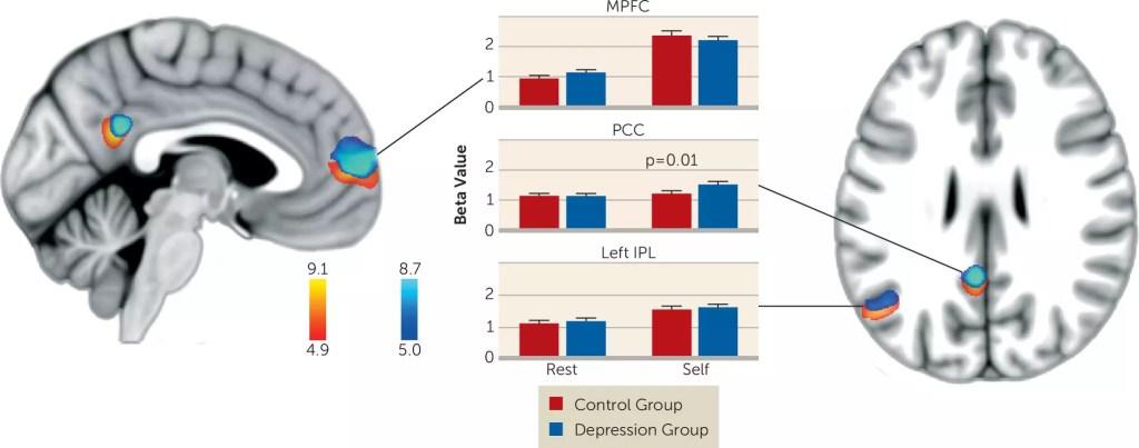 Negative Self Appraisal and Brain Activity