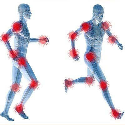 דלקת מפרקים פסוריאטית