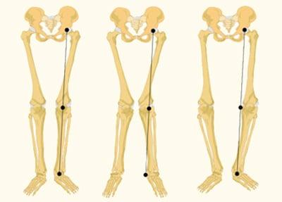 זוויות שונות של מפרקי הברך