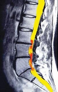 היצרות תעלת השדרה המותנית