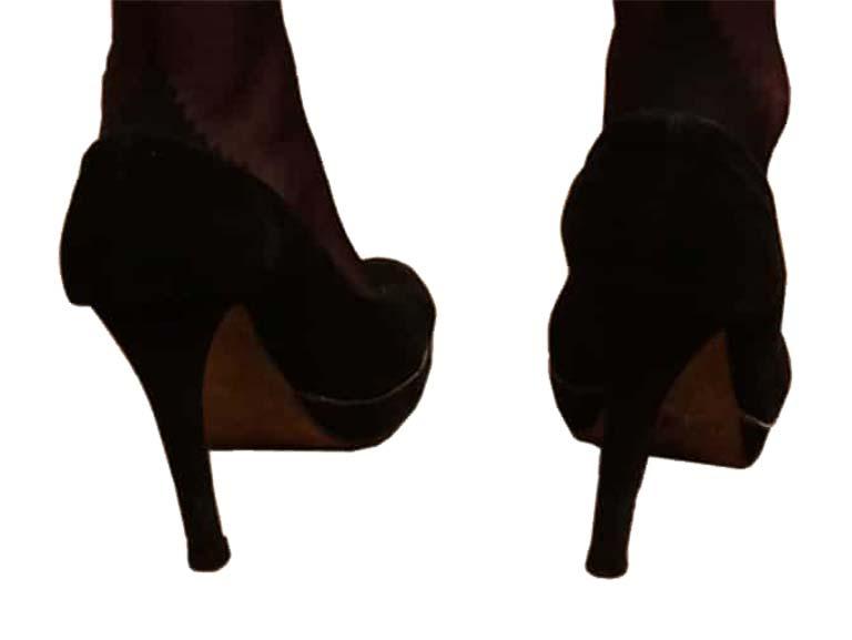 נעלי עקב מכערות את כפות הרגליים