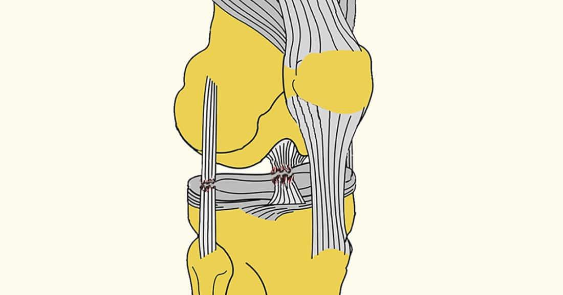 מתיחה או קרע רצועה בברך