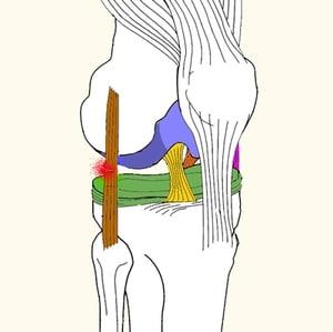 מתיחה או קרע של רצועה בברך