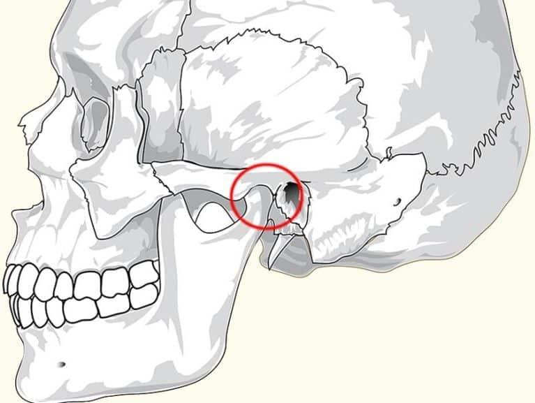 מפרק הלסת מבנה ותנועה