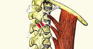 ספונדילוליזיס אבחון וטיפול