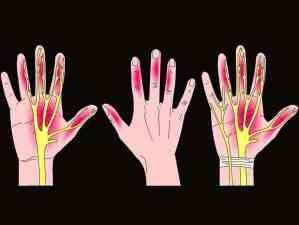 כפות ידיים נרדמות אבחון וטיפול