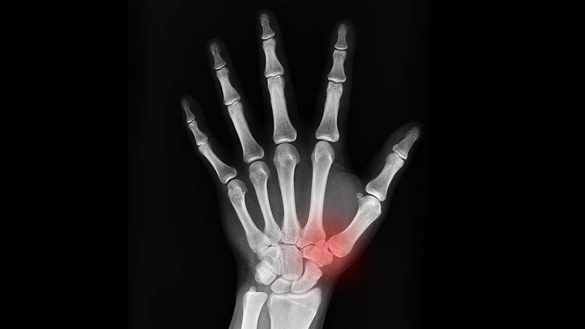 דלקת בשורש כף היד: גורמים וטיפול