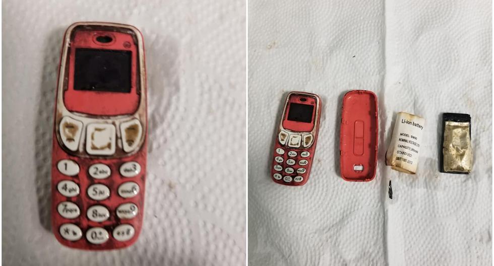 Un medic din Kosovo a scos un telefon mobil din stomacul unui deţinut