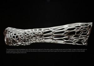3d printed cortex cast
