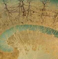 UCSD_hippocam_us_closeup-589x600