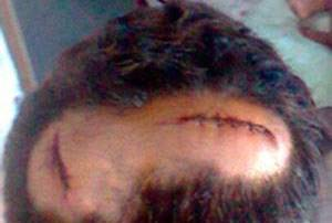 Casal homossexual é agredido em estação de ônibus na Bahia