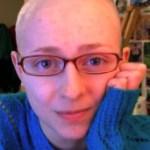 Jovem com 'síndrome de puxar cabelos' usa YouTube como terapia
