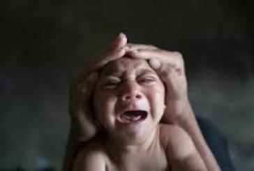 Zika: ONU defende aborto em casos de microcefalia