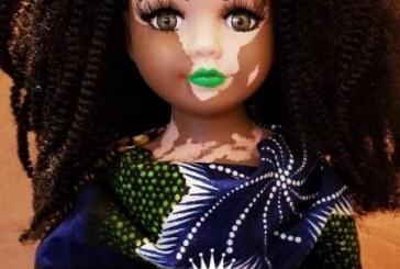 Artista cria bonecas com vitiligo para que todos se sintam representados