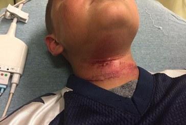 Garoto de 8 anos é enforcado por adolescente em ataque racista