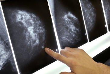 Câncer de mama: índice de morte está ligado à desigualdade social