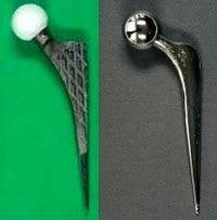 Abb. 5: Modell eines zementfreien Schaftes links mit Keramikkopf (5a) und eines zementiert einzubauenden Hüftschaftes rechts mit Metallkopf (5b)